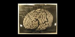 otak Einstein